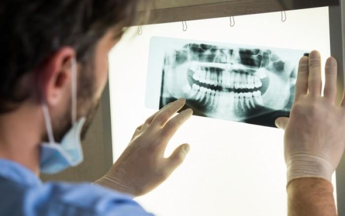 Απώλεια δοντιών: Πόσο αυξάνει τον κίνδυνο θνησιμότητας