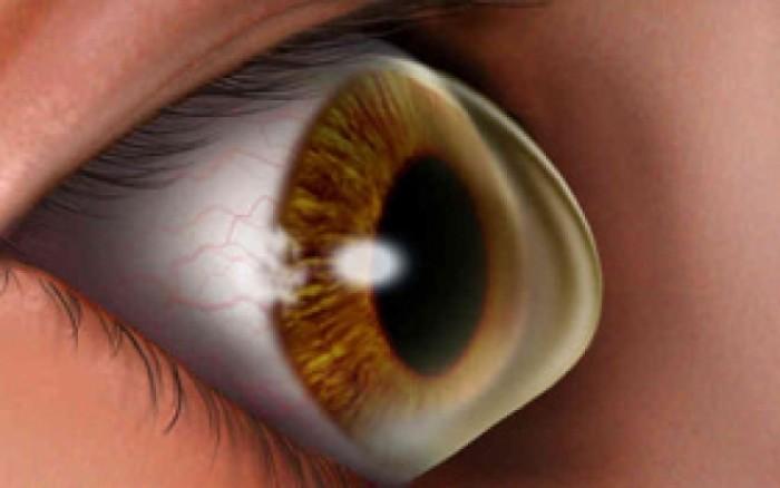 Κερατόκωνος: Ποιοι κινδυνεύουν περισσότερο από την οφθαλμική διαταραχή