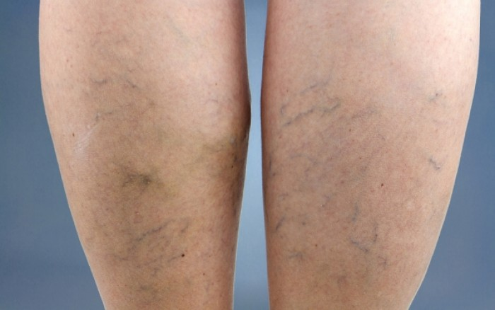 Κιρσοί στα πόδια: Πόσο αυξάνουν το ενδεχόμενο θρόμβωσης