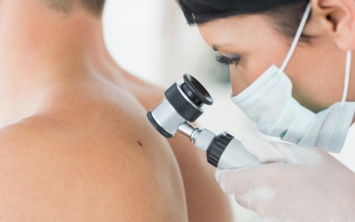 Μελάνωμα: Οι αλλαγές στο δέρμα που θα σε βοηθήσουν να το αναγνωρίσεις