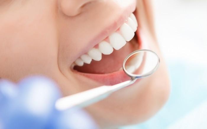 Περιοδοντίτιδα & έλκη στο στόμα: Τι πρέπει να τρώτε για να τα προλάβετε