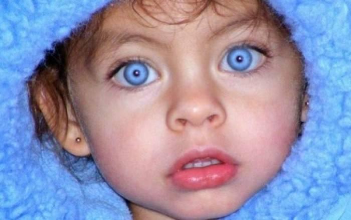 Τι είναι το ρετινοβλάστωμα και σε ποια ηλικία εμφανίζεται;
