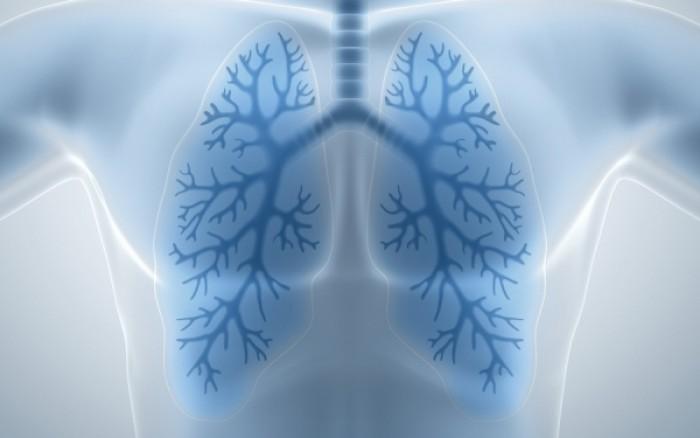 Καρκίνος πνεύμονα: Ποια διατροφή αυξάνει τον κίνδυνο