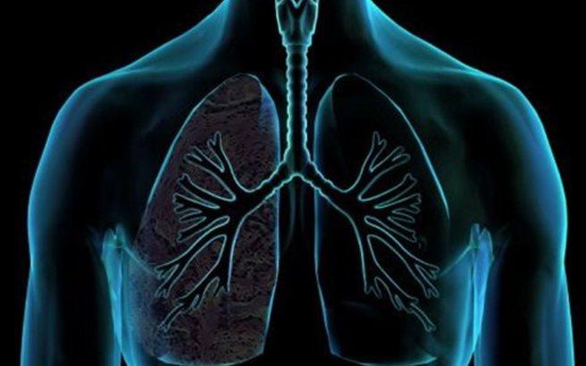 Πώς συνδέονται οι υδατάνθρακες με τον καρκίνο του πνεύμονα