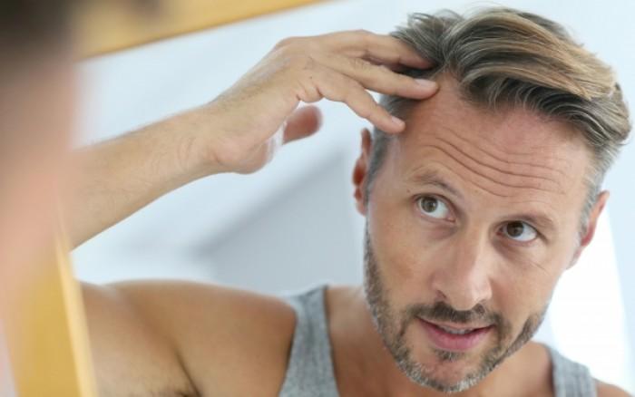 Τριχόπτωση στους άνδρες: Πώς αντιμετωπίζεται ανάλογα με την αιτία της
