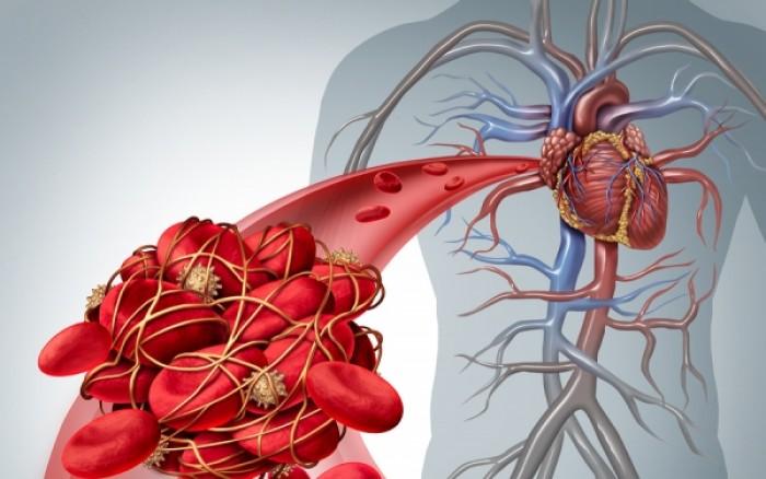 Θρόμβοι στο αίμα: Το συστατικό που τους προλαμβάνει – Πού θα το βρείτε