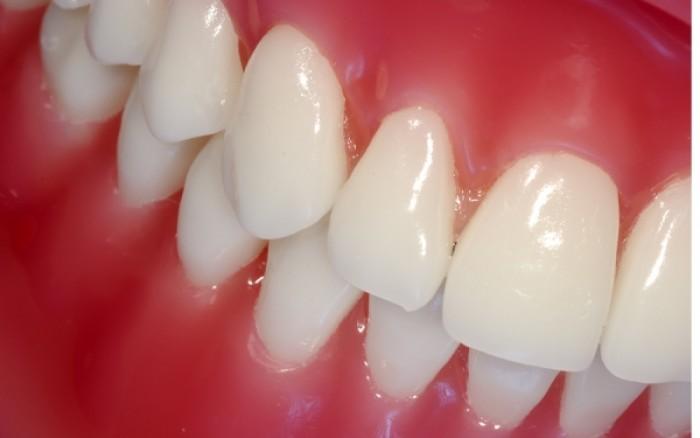 Λεύκανση δοντιών στο σπίτι: Τι πρέπει να προσέχετε