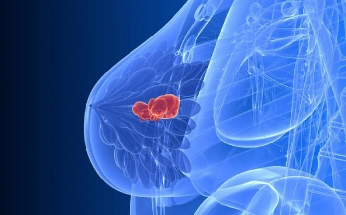 Μια διατροφική συνήθεια προστατεύει από την επανεμφάνιση του καρκίνου του μαστού