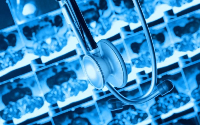 Αύξηση της ανάγκης για ακτινοθεραπείες προβλέπεται στην Ευρώπη εντός 10ετίας