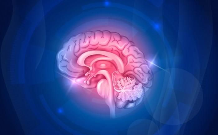 Εγκεφαλικό επεισόδιο: Το υπεύθυνο γονίδιο ανακάλυψαν οι επιστήμονες