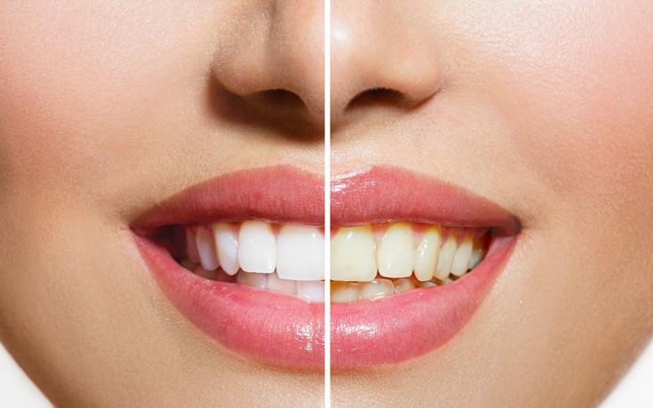 Ποιες τροφές κιτρινίζουν τα δόντια και τι μπορείτε να κάνετε γι' αυτό