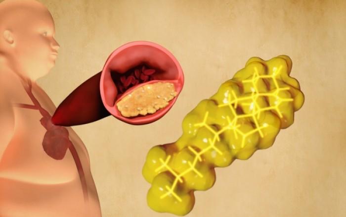 «Κακή» χοληστερόλη: Πόσο επικίνδυνη είναι τελικά για τα καρδιαγγειακά;