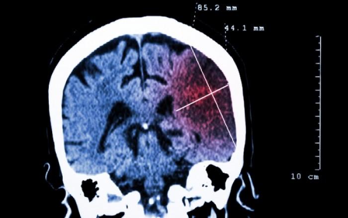 Lancet: Ο παγκόσμιος «χάρτης κινδύνου» για τα εγκεφαλικά