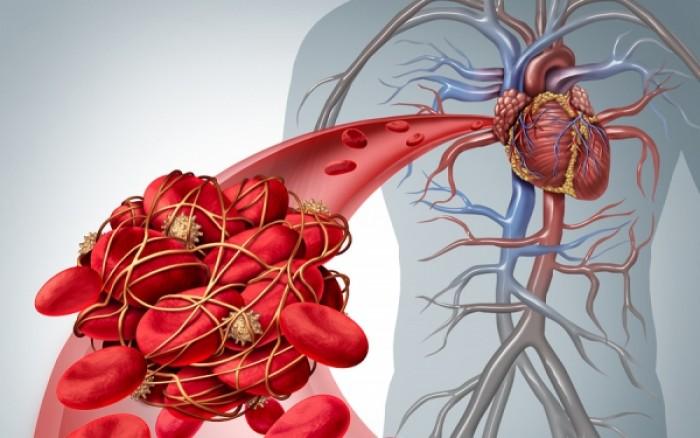 Πνευμονική εμβολή: Ποιοι άνδρες διατρέχουν μεγαλύτερο κίνδυνο