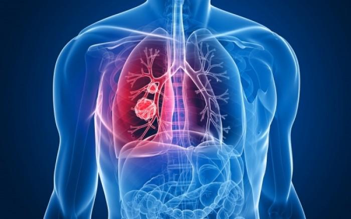 Ποιες είναι οι πιο θανατηφόρες μορφές καρκίνου