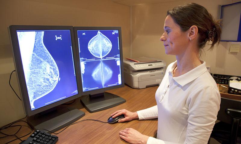 Ακρίβεια 99% στην διάγνωση καρκίνου του μαστού, με την ψηφιακή τομοσύνθεση