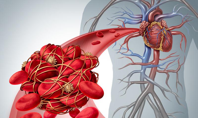 Πνευμονική εμβολή: Η καθημερινή συνήθεια που αυξάνει κατά 40% τον κίνδυνο