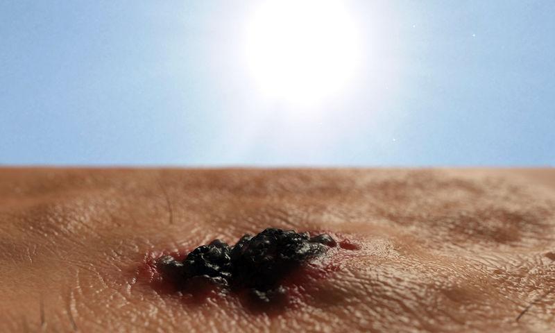 Καρκίνος δέρματος Τα προειδοποιητικά σημάδια μέσα από φωτογραφίες