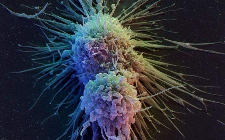 Κυριότερη αιτία θανάτου σε 12 χώρες ο καρκίνος