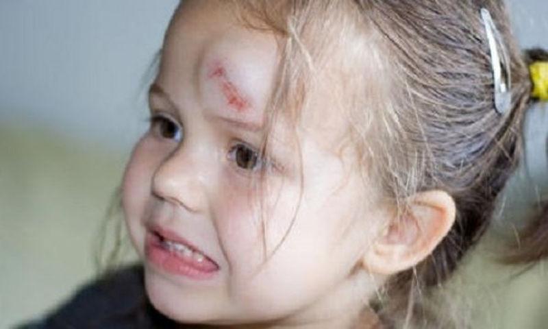 Χτύπημα στο κεφάλι του παιδιού Πότε πρέπει να ανησυχούμε