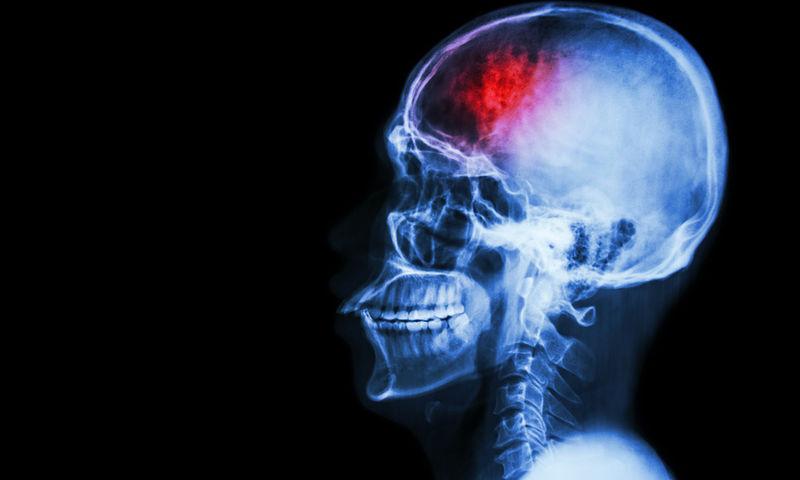 Εγκεφαλικό επεισόδιο Η διατροφή που το προλαμβάνει