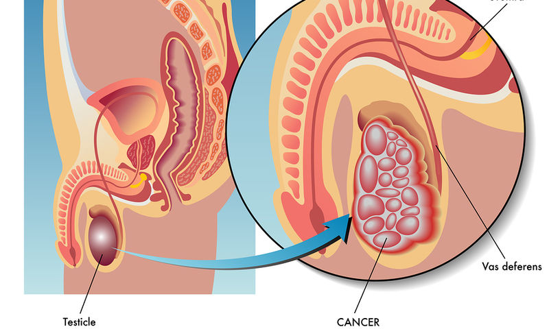 Καρκίνος των όρχεων Τα προειδοποιητικά συμπτώματα