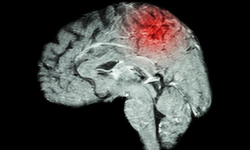 Η ουσία που προλαμβάνει το εγκεφαλικό & σε ποιες τροφές θα τη βρείτε