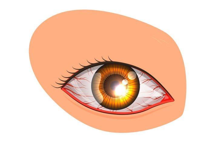 7 reasons eyes bloodshot