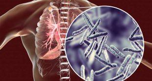 Κάθε μέρα πεθαίνουν από φυματίωση 4.500 άνθρωποι σε όλο τον κόσμο