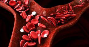 Μεσογειακή Αναιμία: Έλληνας ασθενής σταμάτησε τις μεταγγίσεις αίματος