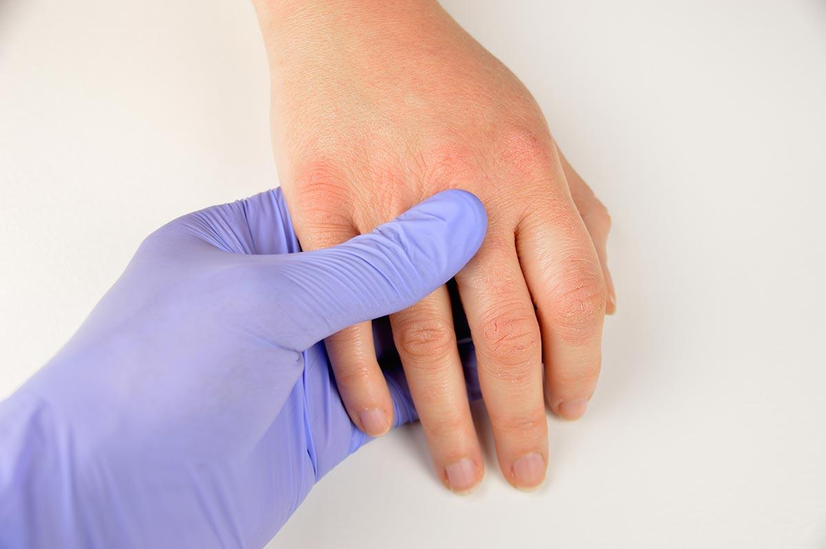 atopiki dermatitida 4