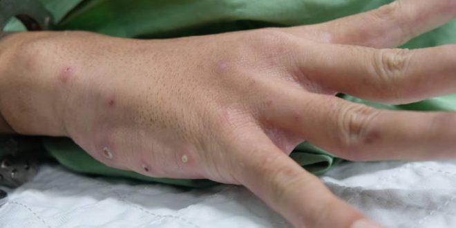 Κρούσμα ψώρας σε Εργαστήριο Επαγγελματικής Κατάρτισης στο Κορδελιό