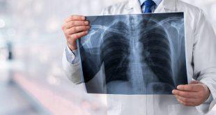 Βρέθηκε τι προκαλεί στους πνεύμονες η ασθένεια που σχετίζεται με το ηλεκτρονικό τσιγάρο