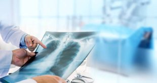 Όλα όσα πρέπει να γνωρίζετε για την Ιδιοπαθή Πνευμονική Ίνωση