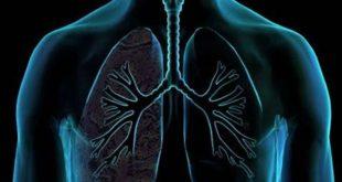 Περισσότερες από 7.000 νέες περιπτώσεις καρκίνου του πνεύμονα κάθε χρόνο στην Ελλάδα