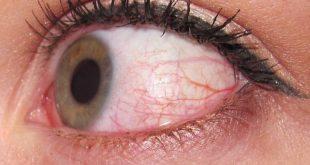 Πέντε περιπτώσεις για να πας στον γιατρό αν έχεις κόκκινα μάτια