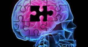Νέο εργαλείο που προβλέπει την εκδήλωση Alzheimer