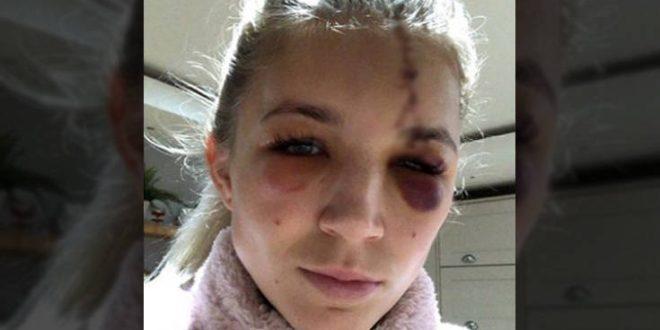 Σοκαριστικός τραυματισμός για την τερματοφύλακα της γυναικείας ομάδας της Λίβερπουλ