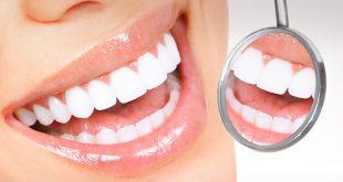 Καμπανάκι από αμερικανούς επιστήμονες: Το πολύ φθόριο βλάπτει το σμάλτο των δοντιών