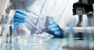 Ιταλία: Ξεκίνησε πειραματική θεραπεία με πλάσμα ιαθέντων σε ασθενείς με κορονοϊό