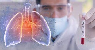 Φάρμακο για τη ρευματοειδή αρθρίτιδα βελτίωσε την κατάσταση ασθενών με COVID-19