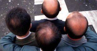 Ένα βήμα πιο κοντά στη θεραπεία της φαλάκρας οι επιστήμονες