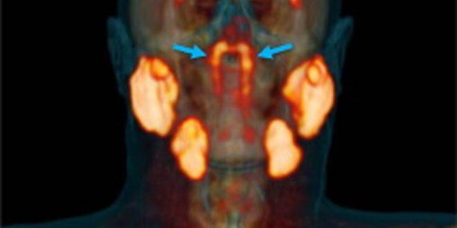 Νέο όργανο ανακαλύφθηκε στον ανθρώπινο λαιμό από ερευνητές που μελετούσαν τον καρκίνο του προστάτη