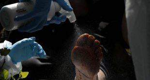Τα πόδια ασθενών με κορονοϊό μπορεί να παραμείνουν μωβ ακόμη και πέντε μήνες αφότου αναρρώσουν