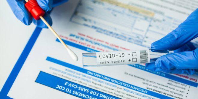Στα 60 ευρώ ο μοριακός έλεγχος και στα 20 ευρώ το rapid τεστ